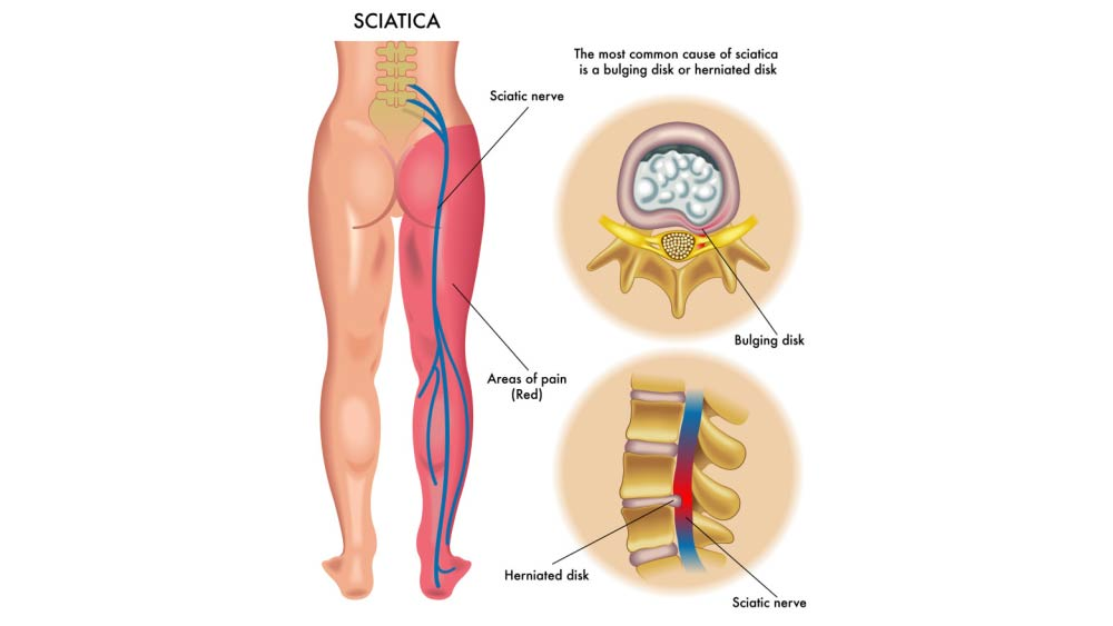 Sciatica Pain and Relief